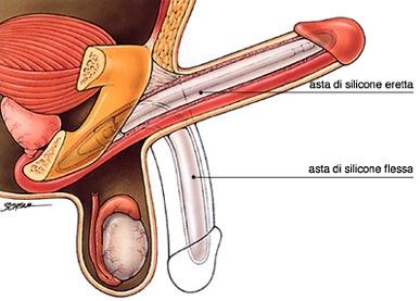 protesi del pene